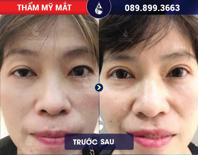 Điều trị sụp mí mắt tại Phú Khang