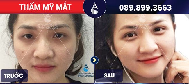 Khách hàng sử dụng dịch vụ cắt mắt
