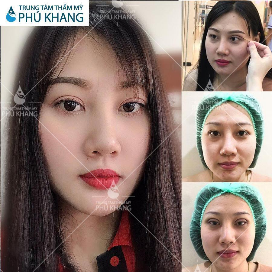 hình khách Cắt mắt Plasma tại trung tâm thẩm mỹ Phú Khang