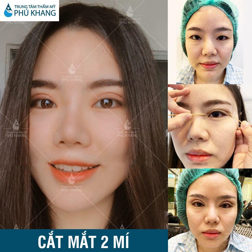 hình khách hàng cắt mắt 2 mí tại thẩm mỹ Phú Khang