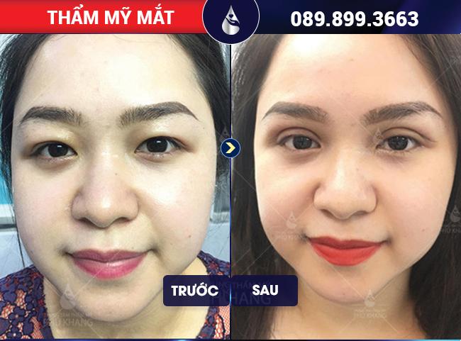 Khách hàng sau 45 phút cắt mí mắt tại Phú Khang