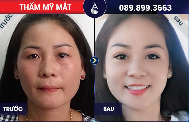 khách hàng nữ cắt mắt