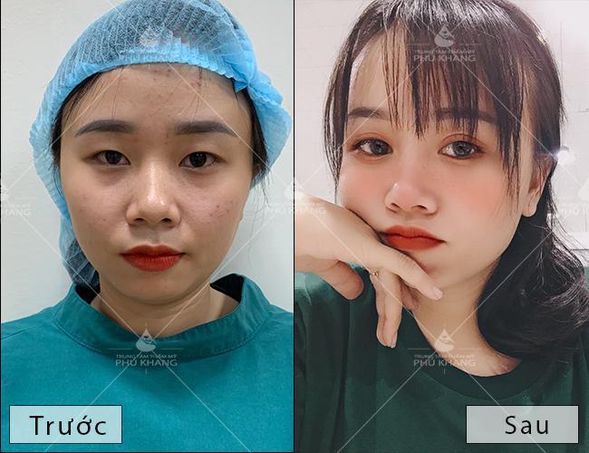 cắt mí giá bao nhiêu, khách hàng sau khi cắt mí mắt