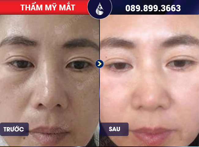 Khách hàng Hà Giang Có Nên Lấy Mỡ Bọng Mắt Không tại Thẩm Mỹ Phú Khang