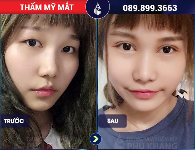 Dưới 18 tuổi cắt mắt được không