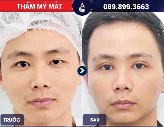Điểm khác giữa cắt mí mắt nam và nữ