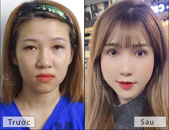 hình ảnh khách hàng sau khi cắt mí mắt