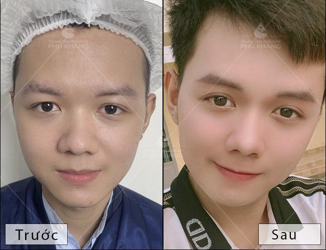 hiệu quả sau khi cắt mí mắt tại Phú Khang