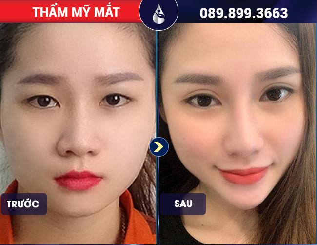 Khách hàng nhấn mí mắt có an toàn không tại Phú Khang