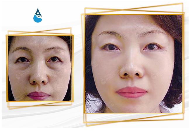 hình ảnh khách hàng sau khi cắt mí mắt dưới