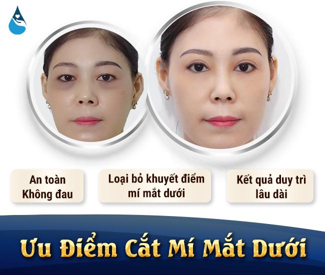 ưu điểm khi cắt mí mắt dưới