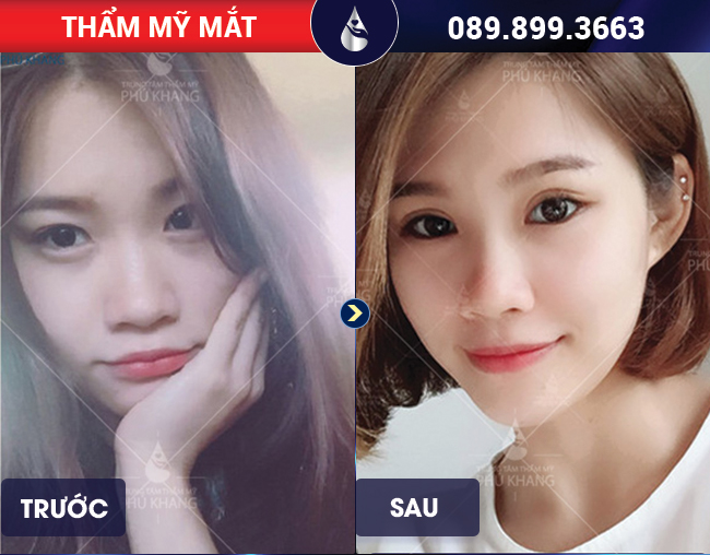 hình ảnh khách hàng chỉnh sửa việc cắt mí mắt không đều tại Phú khang