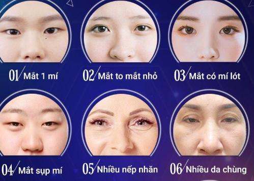 Khuyết điểm mắt nên cần nhấn mí mắt có an toàn không