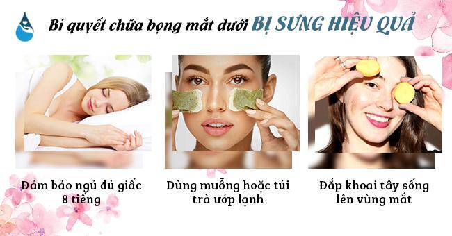 Bí quyết chữa bọng mắt dưới bị sưng
