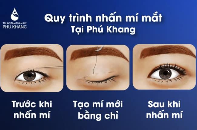 ai nên nhấn mí mắt có hại không