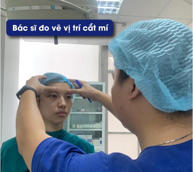 Bác sĩ đo vị trí để nhấn mí mắt có an toàn không