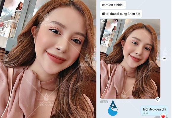 Feedback khách hàng cắt mắt tại Phú Khang