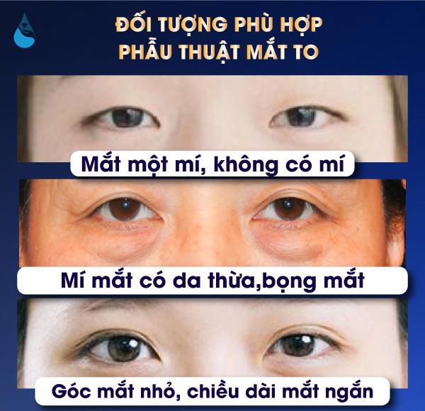 Đối tượng Phẫu thuật mắt to