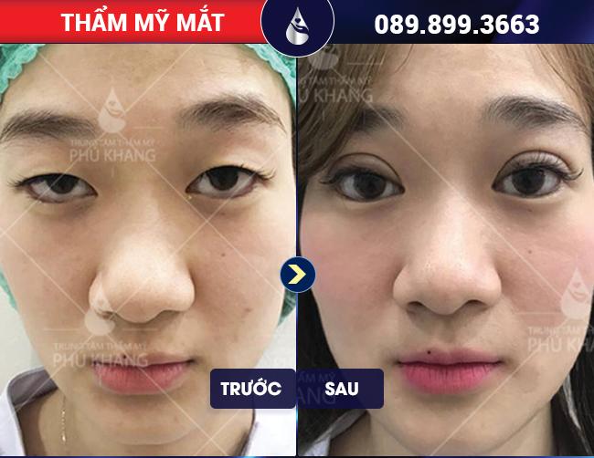 Hình ảnh khách hàng phẫu thuật mắt to tại TMV Phú Khang