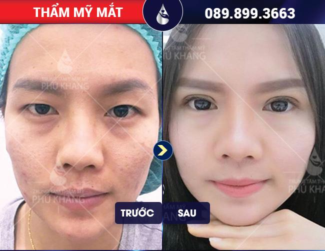 Ảnh khách hàng phẫu thuật mắt to tại Phú Khang