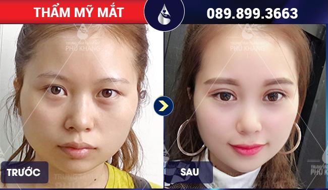 Khách hàng phẫu thuật mắt to tại Phú Khang