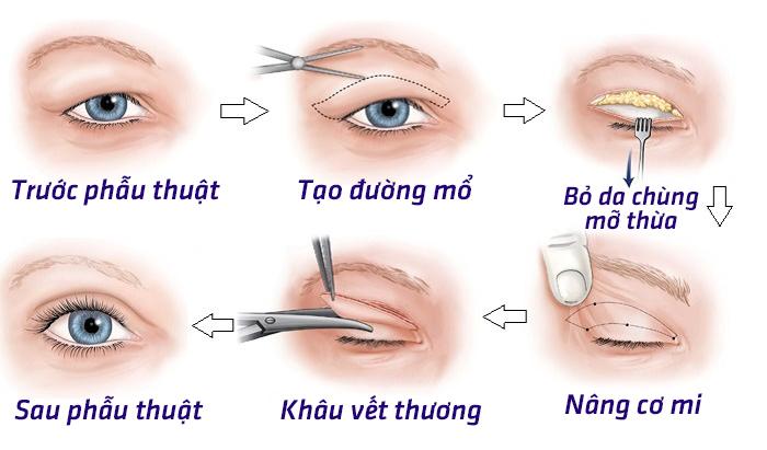 Mô phỏng chữa sụp mí mắt tại Phú Khang