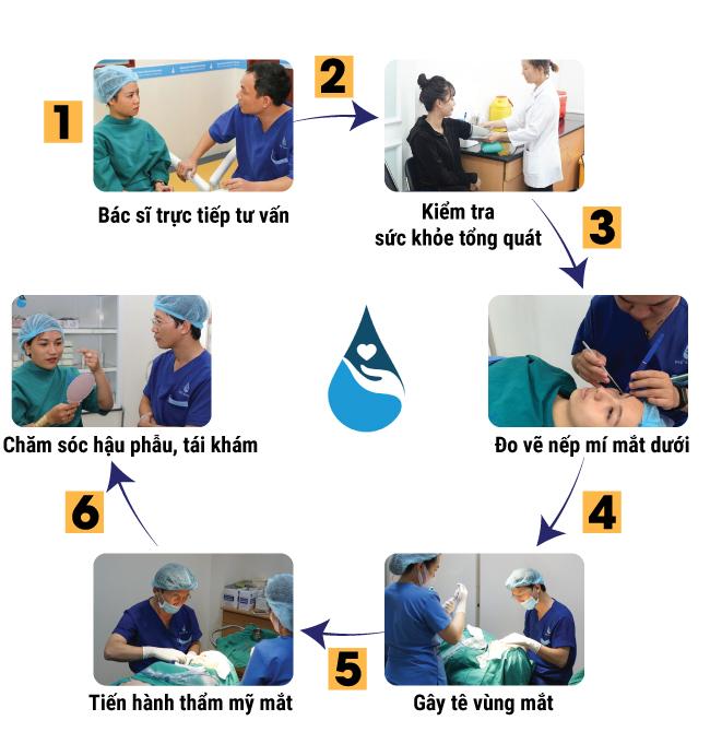 quy trình cắt mí mắt dưới