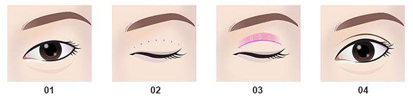 quy trình Cắt mí mắt sau 2 tháng