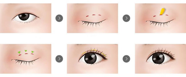 quy trình cắt mí mắt có ảnh hưởng gì không