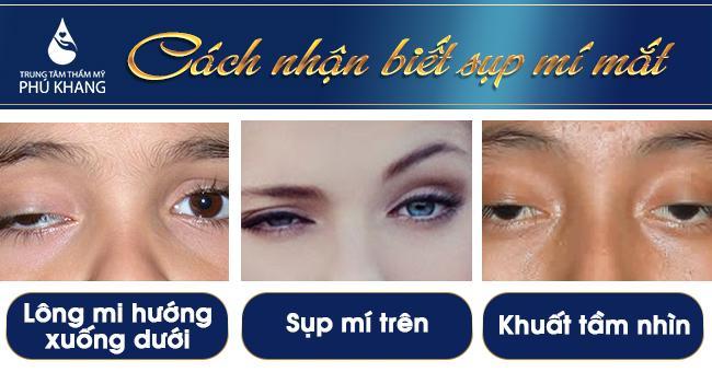 Đối tượng bị chữa sụp mí mắt ở đâu