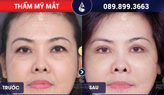 hình ảnh khách hàng sau khi chăm sóc cắt mí mắt