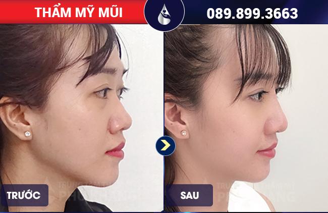 hình ảnh khách hàng chỉnh sửa mũi gồ ở đâu đẹp