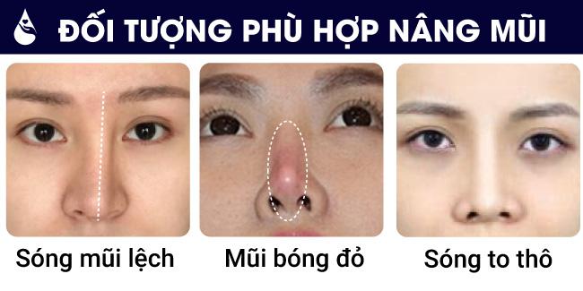 Đối tượng phù hợp nâng mũi cấu trúc