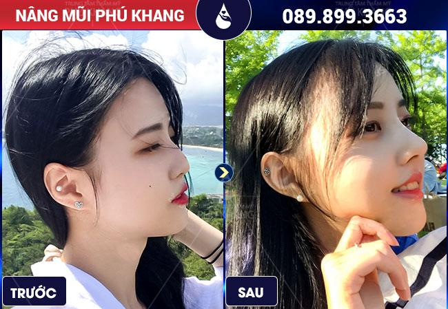 Hình ảnh khách hàng nâng mũi được bao nhiêu năm