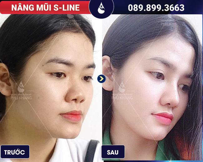 hình ảnh khách hàng nâng mũi