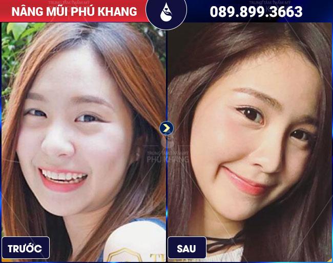 khách hàng nâng mũi giá bao nhiêu tiền tại Phú Khang