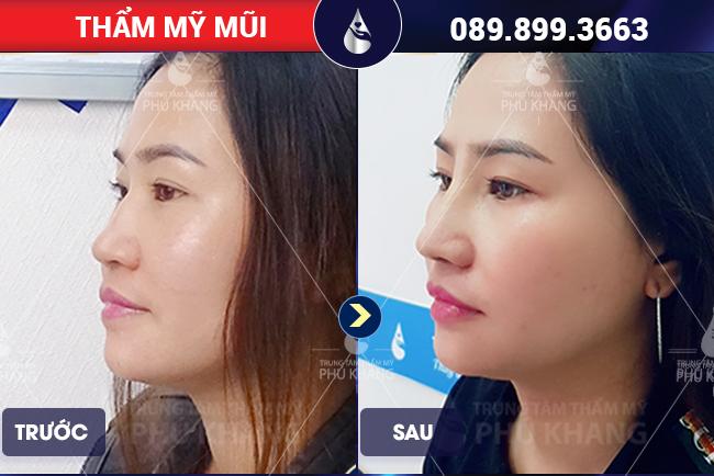 Khách hàng chỉnh sửa mũi gồ tại Thẩm mỹ Phú Khang