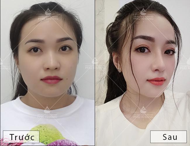 hình ảnh khách hàng nâng mũi l line