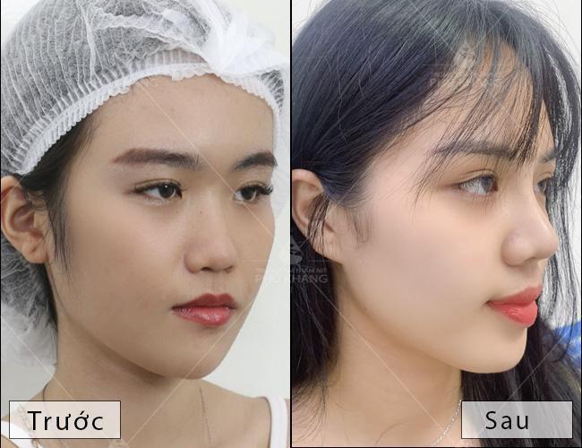 kết quả nâng mũi l line cho nữ