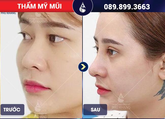 Khách hàng sau khi thực hiện nâng mũi tại TMV Phú Khang