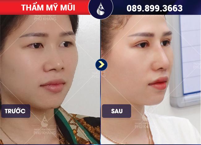 Chi phí mổ lệch vách ngăn mũi tại Phú Khang