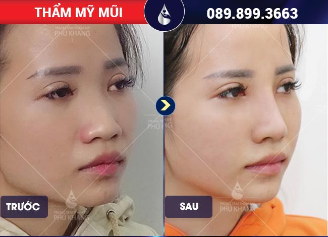 hình ảnh khách hàng nâng mũi sụn tự thân có tốt không