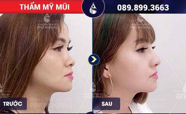 Khách nâng mũi đẹp tại TMV Phú Khang