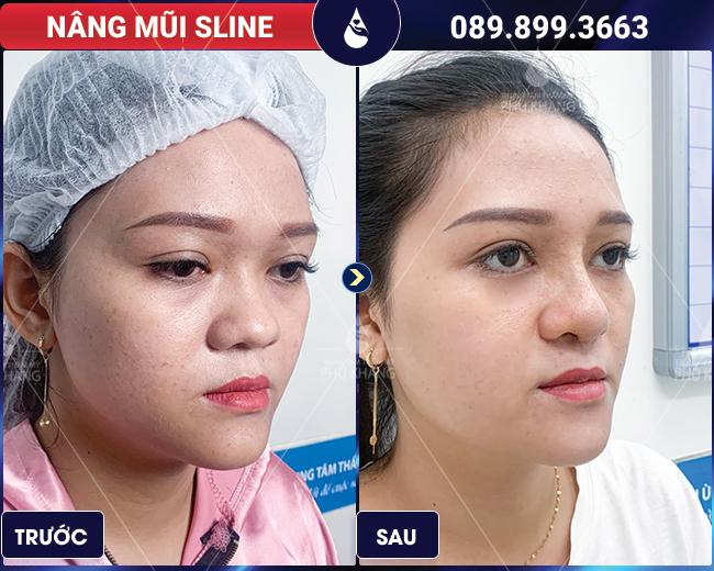 hình ảnh khách hàng sau khi nâng mũi