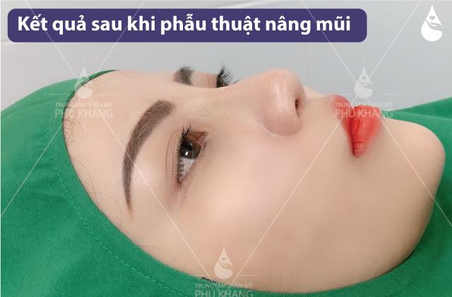 Kết quả sau 60 phút phẫu thuật nâng mũi tại Phú Khang