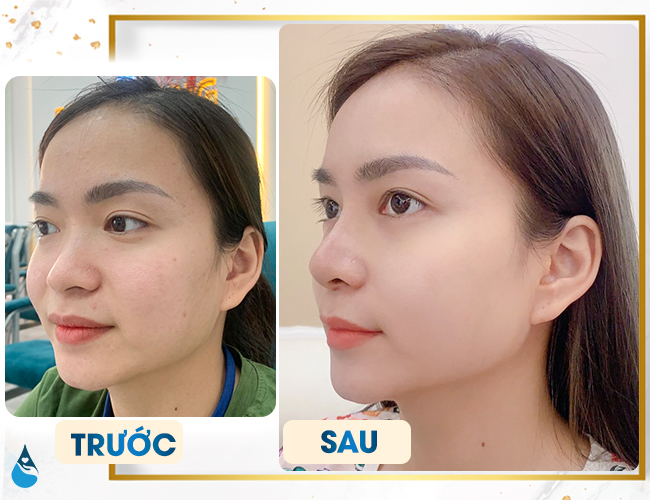 Nâng mũi bọc sụn tự thân cải thiện dáng mũi như thế nào?