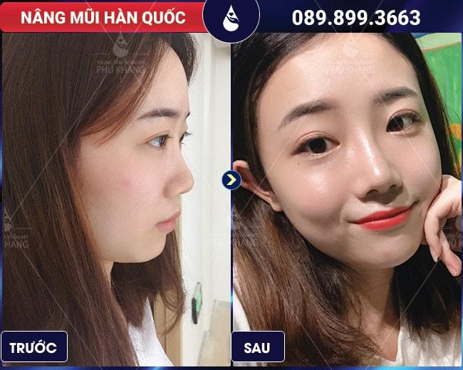 khách hàng nâng mũi có đau không