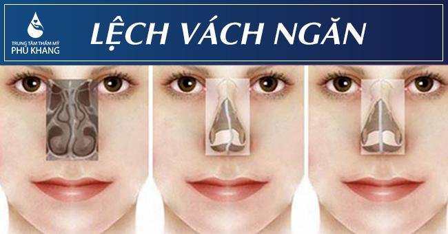 Các dạng Mổ lệch vách ngăn mũi có đau không
