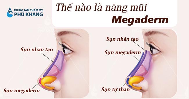 Thế nào là nâng mũi megaderm?