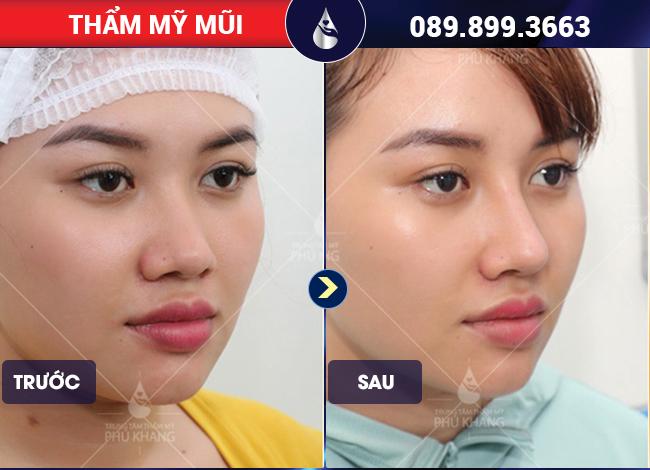 hình ảnh khách hàng nâng mũi bọc sụn có đau không